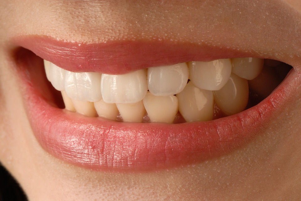 Cosmetic Dentists Christchurch. Cosmetic Fillings Christchurch, Cosmetic Dentists Christchurch. Smilesville Dental, Riccarton Road Christchurch.