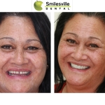 Smilesville Dental Christchurch Cosmestic Dentists Christchurch