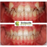 Invisalign Treatment Christchurch