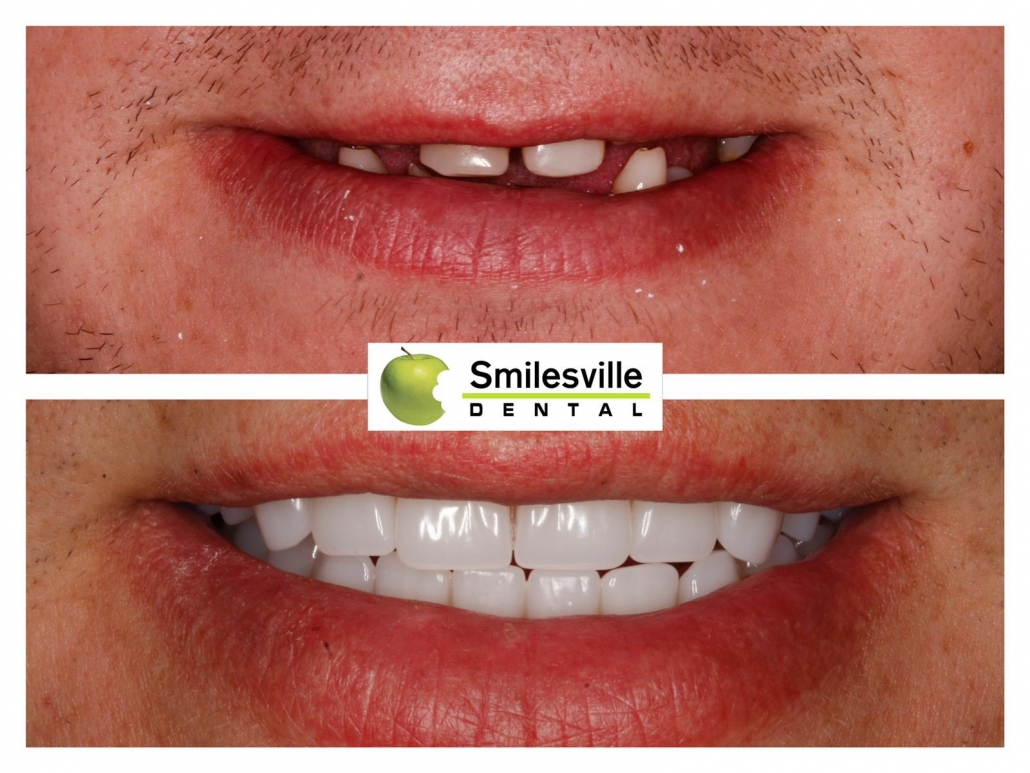 Cosmetic Dentists Christchurch. Smilesville Dental