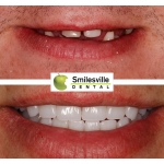 Dental Services Christchurch, Cosmetic Dentists Christchurch. Smilesville Dental, Riccarton Road Christchurch.