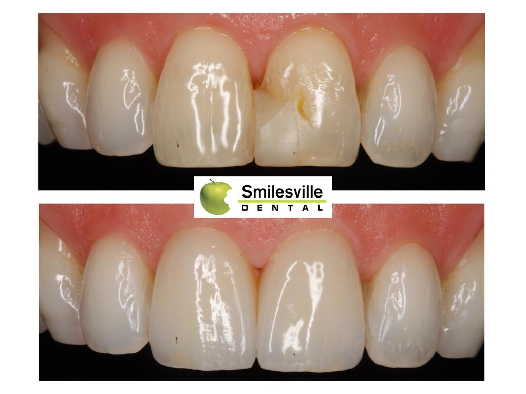 Dentist Christchurch, Cosmetic Dentists Christchurch. Smilesville Dental, Riccarton Road Christchurch.