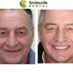 Invisalign Teeth Straightening Christchurch. Smilesville Dental